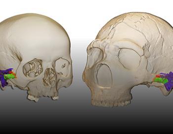 Neandertales_ HM Hospitales